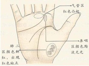 Warna tangan paru-paru